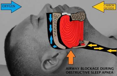 The Risk of Sleep Apnea for Quadriplegics