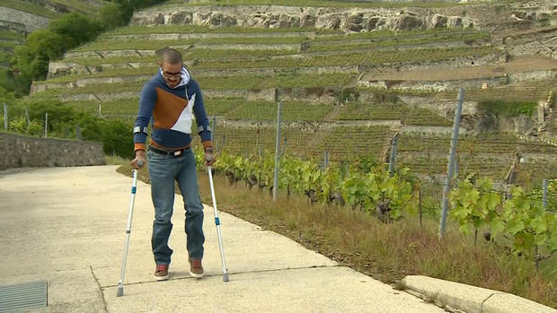 Paralyzed patients walk again with help of spinal implant